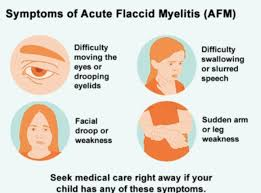 PANDEMIC ALERT: Watch-out for Acute Flaccid Myelitis (AFM) in Children 1